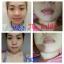 Aura Pink Two ครีมทาปากแดง ปากชมพู นมชมพู Lip & Nipple Cream thumbnail 127